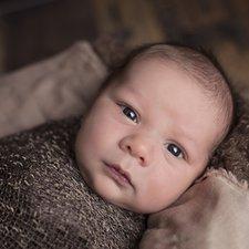 Mengatasi Mata Belek pada Bayi