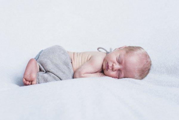 5 Kondisi Aneh pada Bayi Baru Lahir